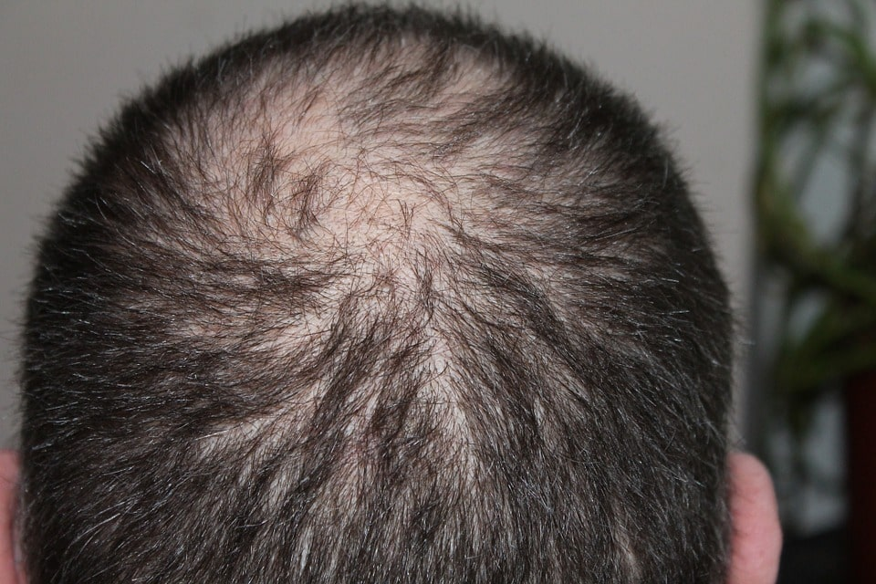 how to reduce hair fall in hindi, how to get rid off hair fall